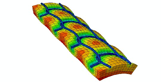 Finite element model of deformed vascular prosthesis